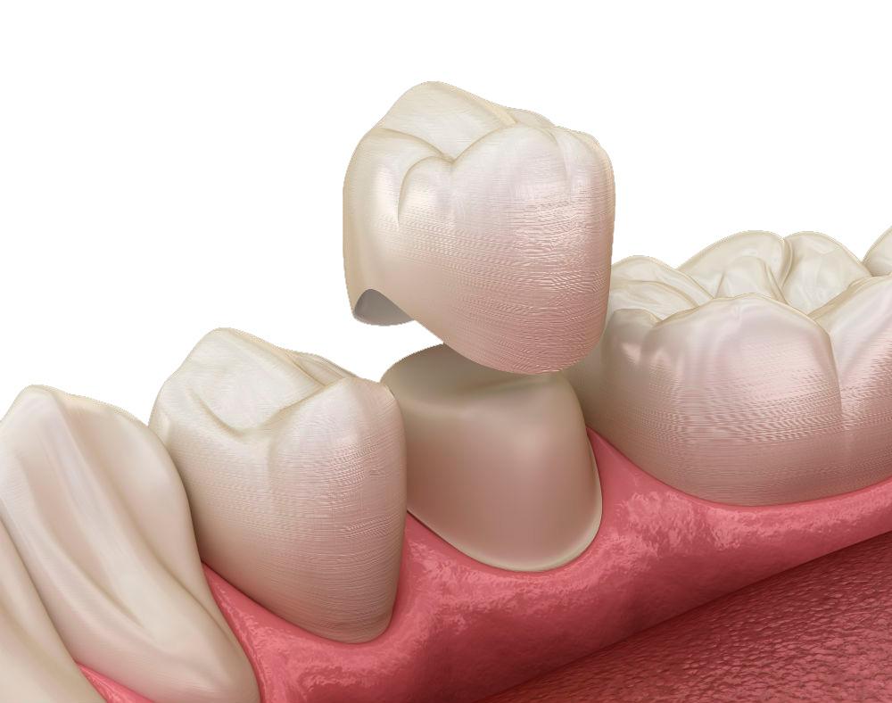 Сколько стоит керамическая коронка на зуб