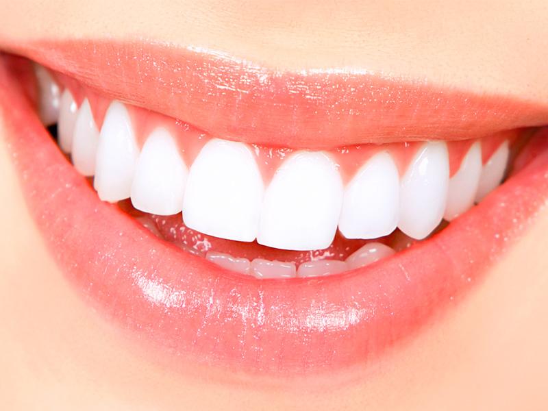 Накладные виниры. Накладки на зубы